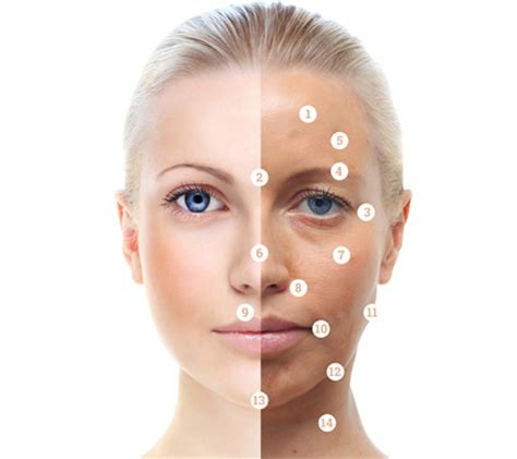 acne treatment facial jpg 450x400
